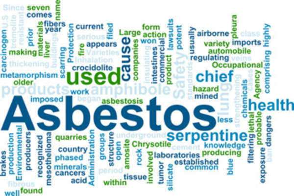Does Your Exposure to Asbestos Require a Lawyer?